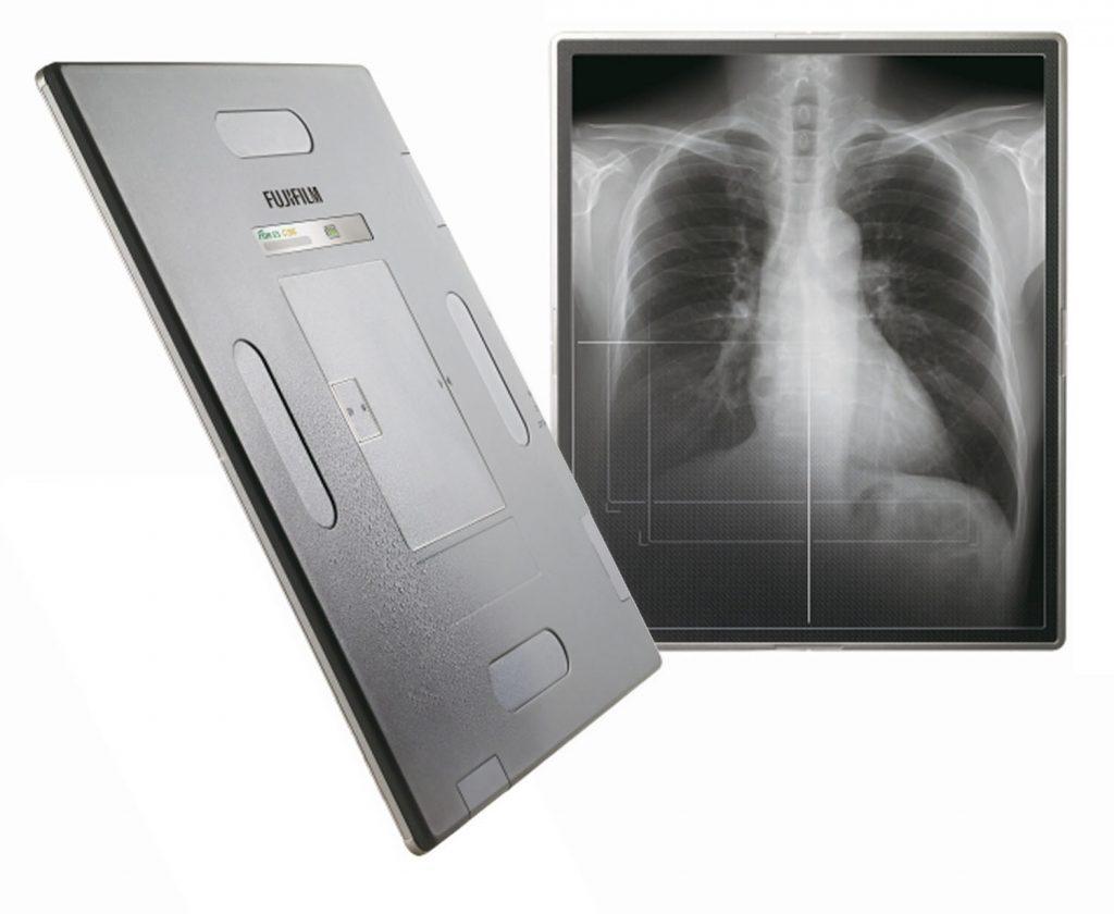 FDR-ES-Detektor und Röntgenbild